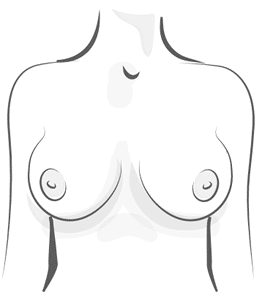 Rounded Breast Illustration